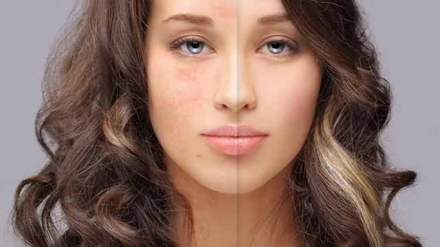 चेहरे के काले धब्बों से छुटकारा पाने के घरेलु उपचार